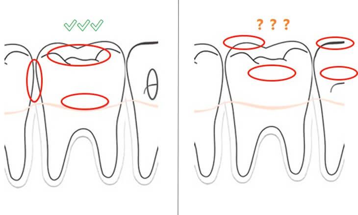 ฟันผุอยู่ที่ไหน